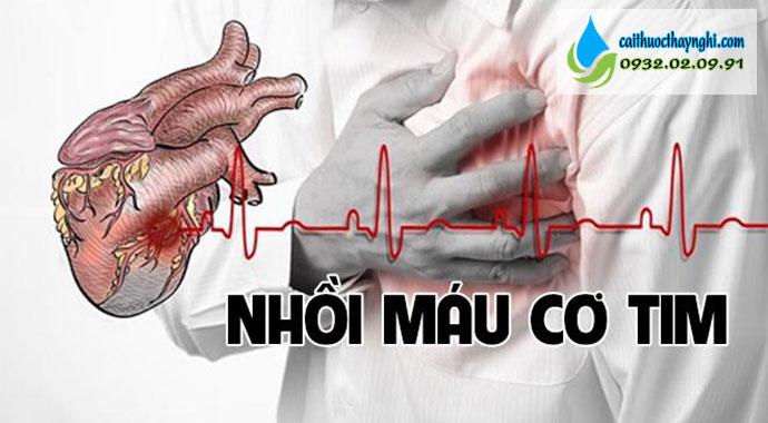 nhồi máu cơ tim do hút thuốc lào