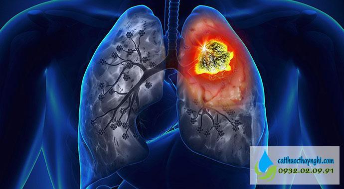 ung thư phổi do hút thuốc lào