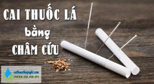 cai thuốc lá bằng châm cứu