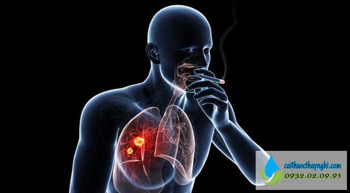 hút thuốc lá bao lâu thì ưng thư phổi